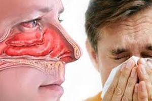 Tudo sobre a Rinite Alérgica