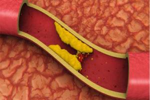 Como controlar a gordura no sangue?